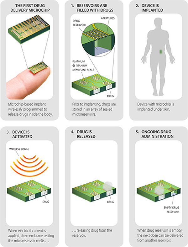 Tiny Remote-Controlled Skin Implant Provides Birth Control for 16 Years