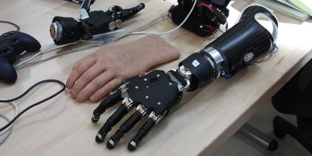 Smart Skin Gives Prosthetics Sense of Touch & Amputees More Independence