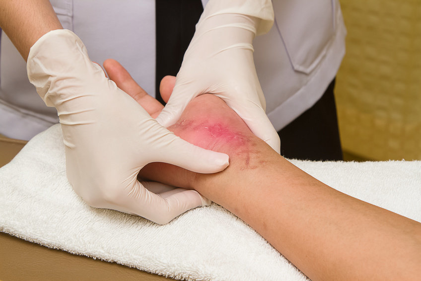 Self-Healing Sensors Mimic the Self-Healing Properties of Human Skin