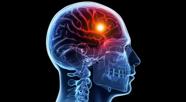 Researchers Identify a Gene for Post-Stroke Brain Repair