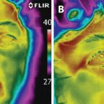Thermal Imaging Assists Surgical Procedures