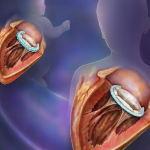 Heart Implant Can Grow With the Body