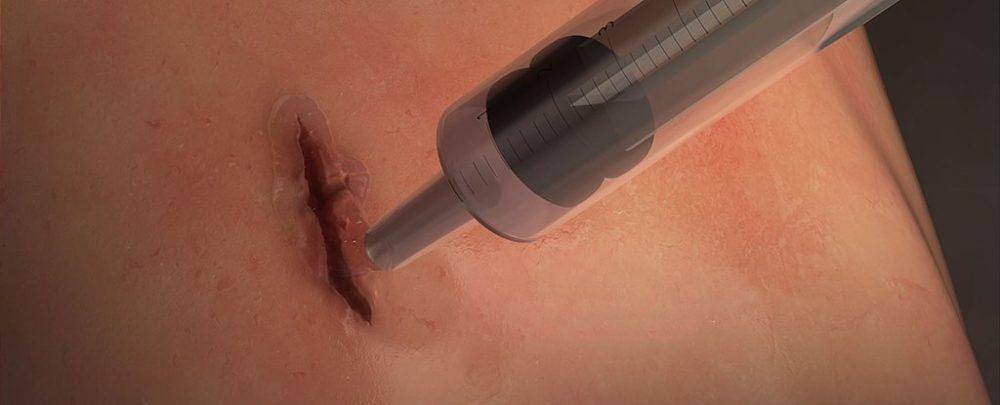 Surgical glue: MeTro