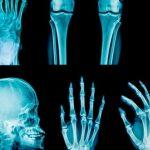 Italian Family May Hold Key to Treatments for Chronic Pain