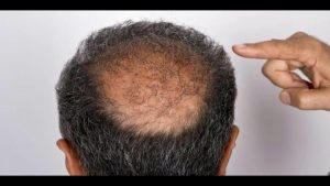 Hair Loss? Stem Cell Therapy Brings Hope