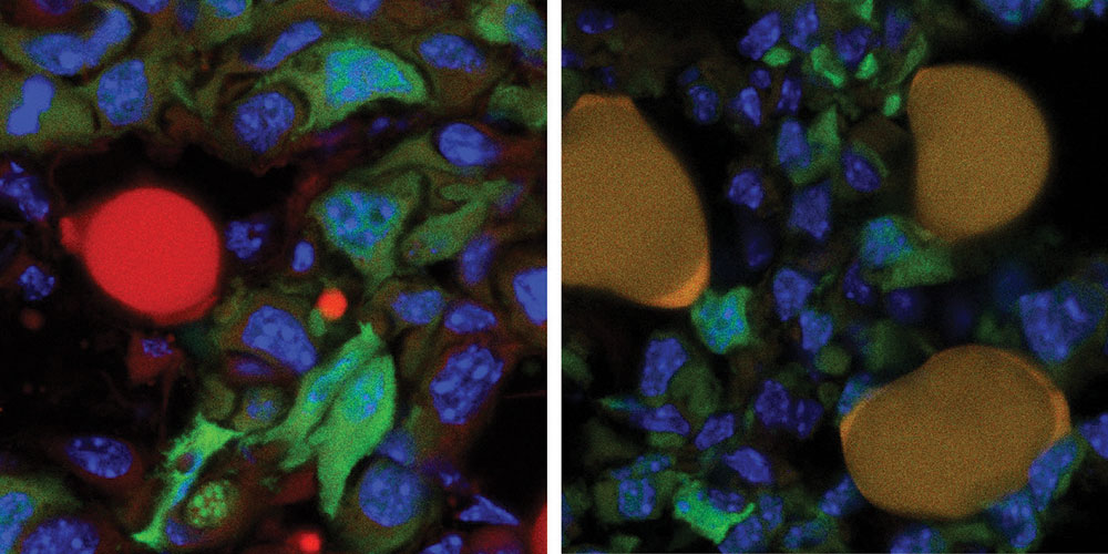 New Therapy Turns Breast Cancer Cells into Fat to Stop Them from Spreading