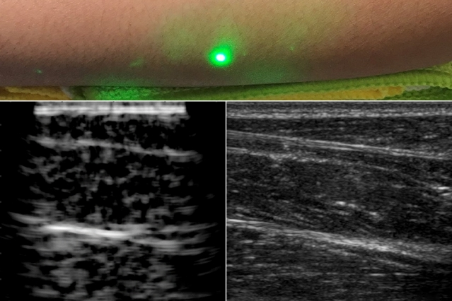 MIT's New Laser Ultrasound Machine Provides Touch-Free Imaging