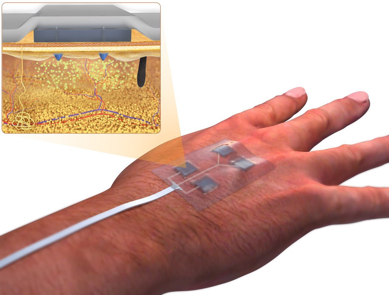 Wirelessly-Controlled Bandage Help Heal Wounds That Won't Heal