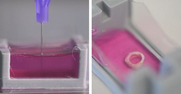 3D Printing Bones Directly into the Human Body