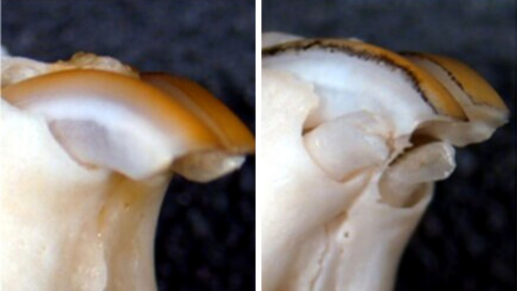 New Treatment Could Make Re-Growing Teeth Possible