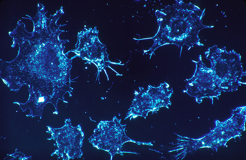 New Study Reveals That Cancer Cells Eat Themselves to Survive