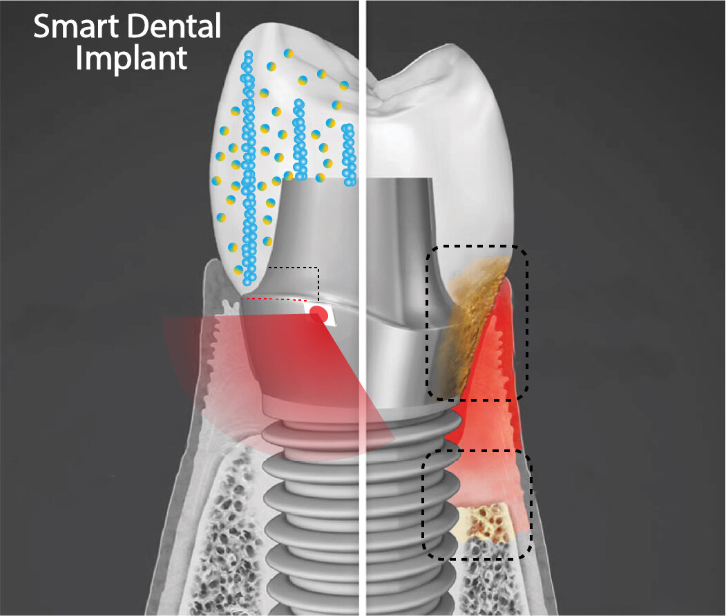 Smart Dental Implants Generate Their Own Electricity to Kill Bacteria and Heal Infected Gums